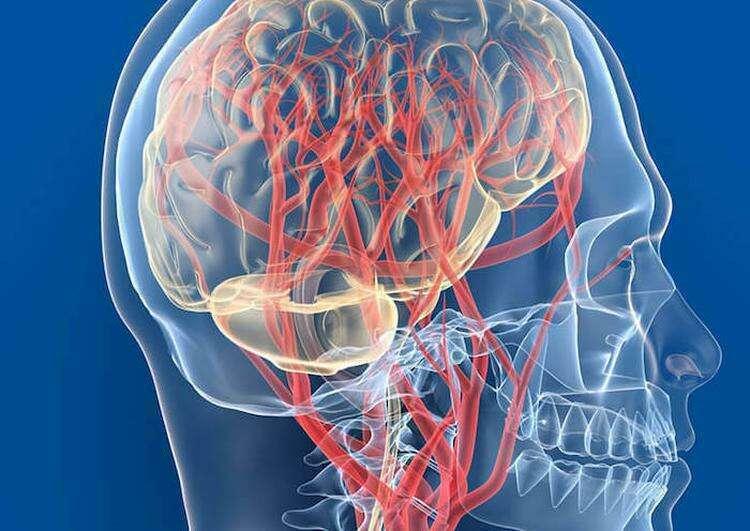 Народная медицина: Советы при нарушении кровообращения мозга
